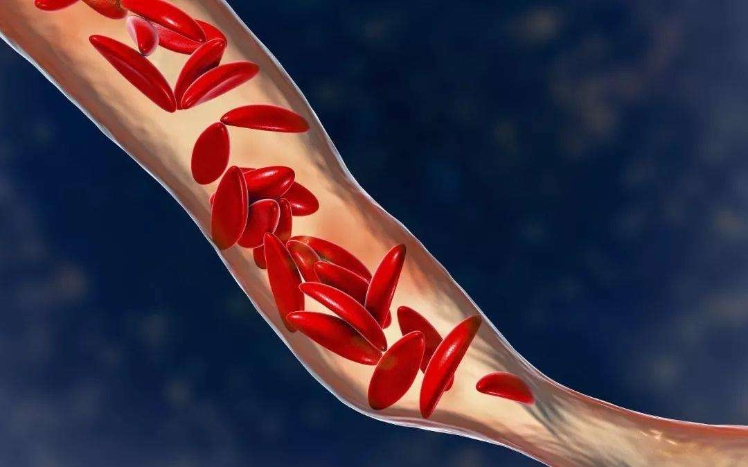 血管的健康关乎机体的健康1