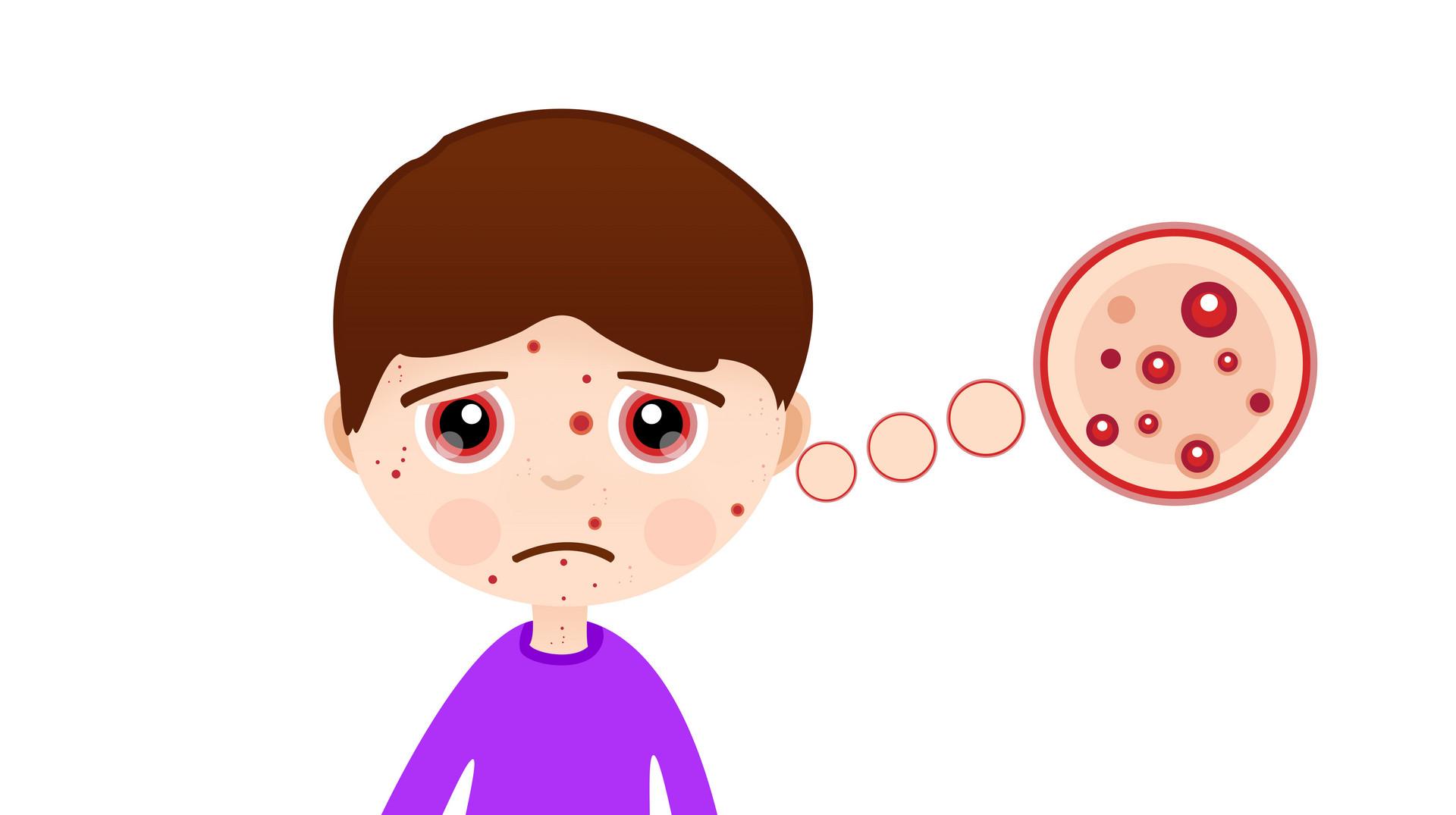 益生菌能缓解过敏吗?